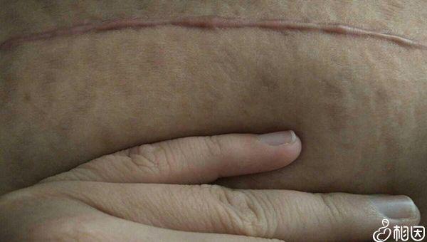 剖腹产后的伤口