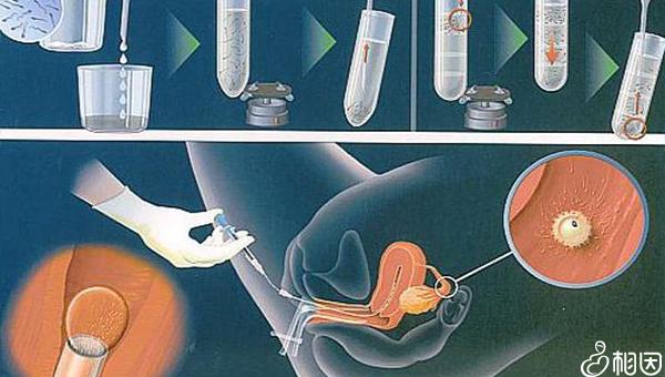 唐都医院正常试管周期为2-3个月