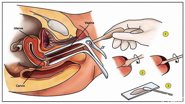 宫颈刮片检查阳性