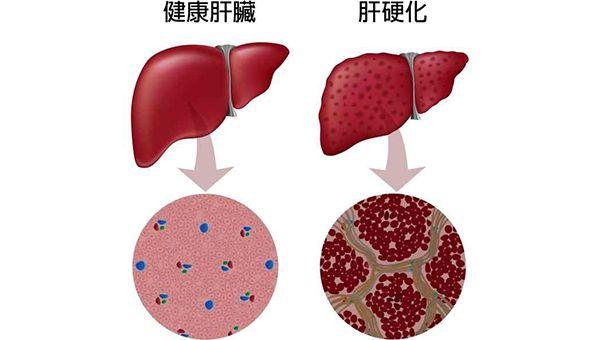 脐带干细胞治疗肝硬化成功率较高