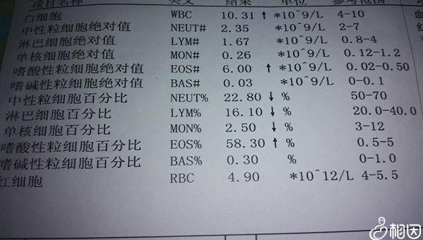 血液检查报告单
