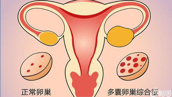 多囊卵巢患者症状