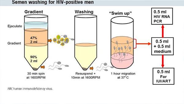 hiv精子洗涤术的具体流程