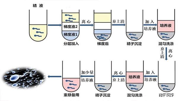 精子洗涤的原理