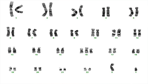 16号染色体三体很严重