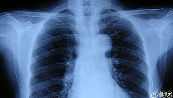 X光胸片检查作用