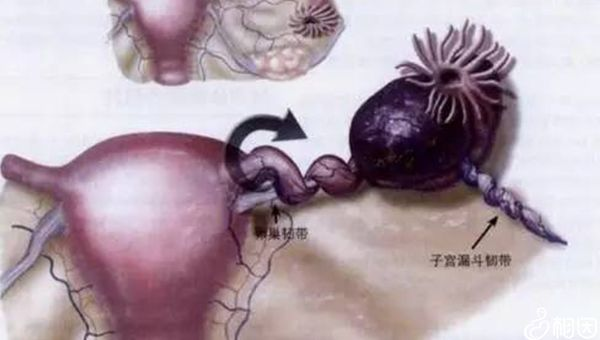 卵巢扭转多由先天因素引起