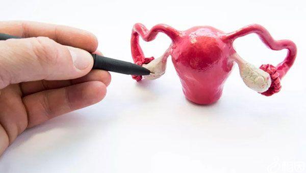 患有超雌综合症女性往往子宫异常