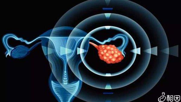 做卵巢切除对女性身体有影响