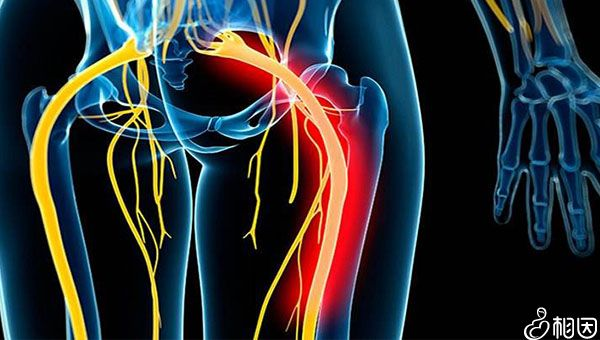 压迫到坐骨神经会出现疼痛