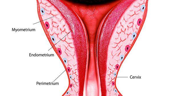内膜活检的作用