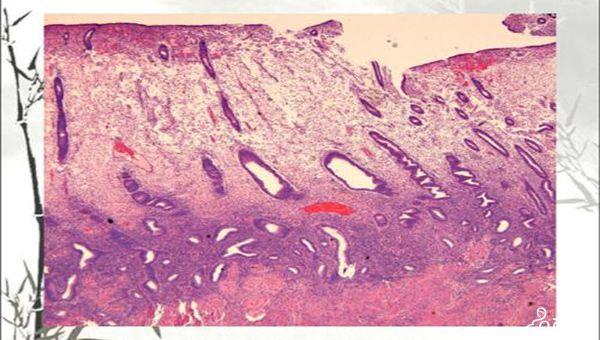 子宫内膜检查后的注意事项
