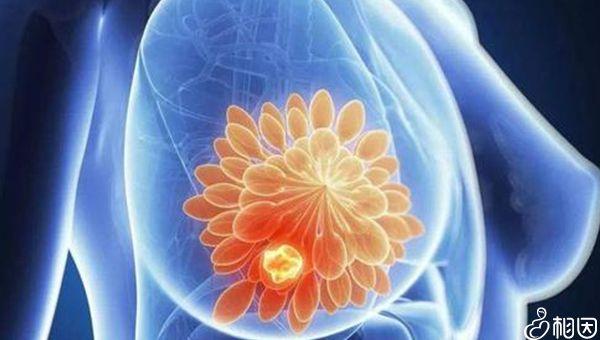 乳腺专用的射线是安全的