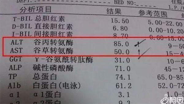 转氨酶的正常值应为40以下