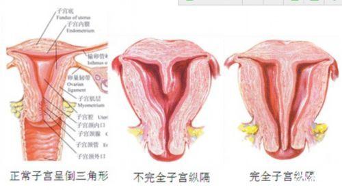 纵隔子宫一定要手术吗