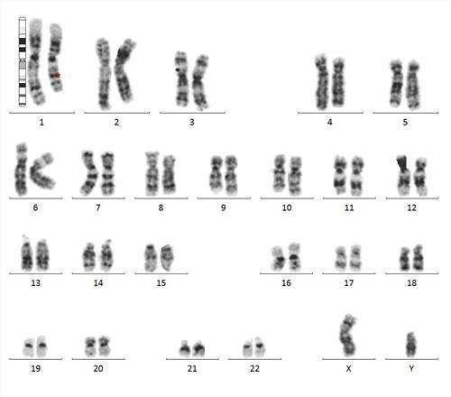 染色体检查结果怎么看