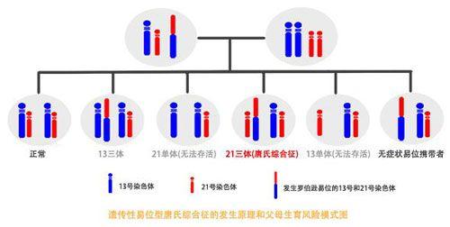 染色体平衡易位
