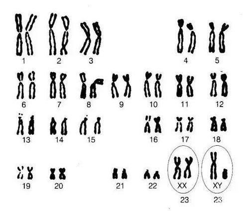 精子染色体检查费用多少