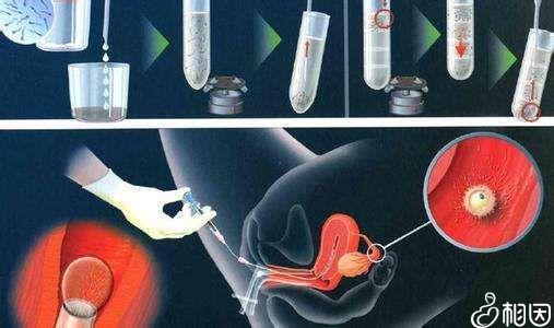胚胎移植过程图