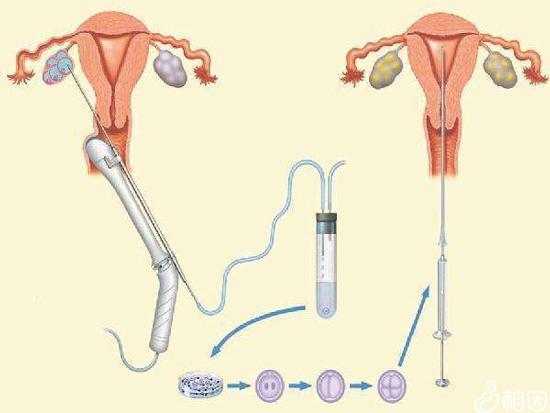 试管婴儿取卵手术过程