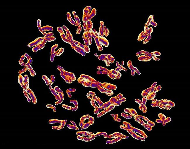 Y精子分离选性别