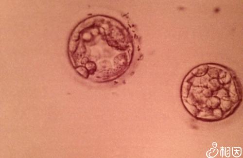 囊胚着床详细过程