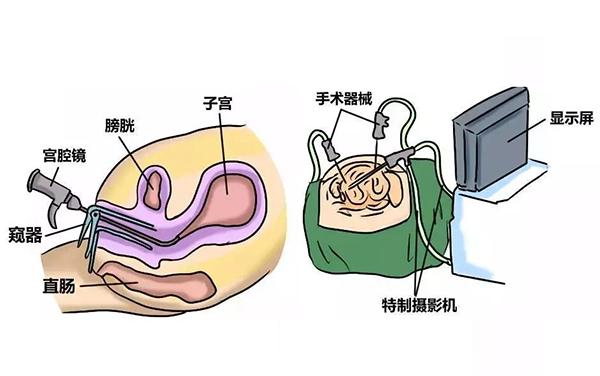 宫腔镜检查的步骤