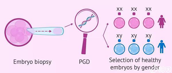 PGD能诊断单基因缺陷诱发的疾病