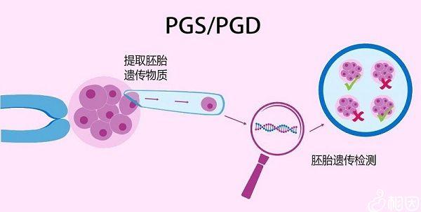 PGD和PGS技术