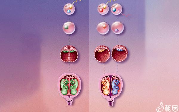 同卵双胞胎发育流程