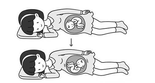 膝胸卧位一天什么时间做最好