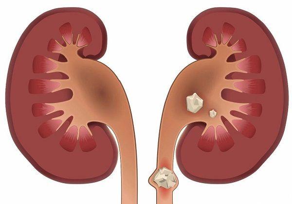 肾衰竭是肾脏疾病中的危重症