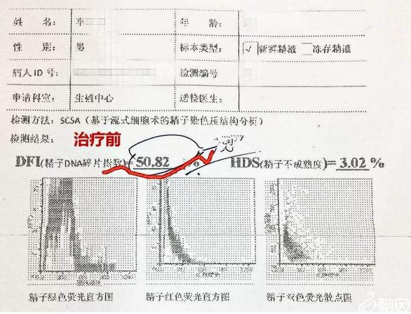 精子碎片率检查