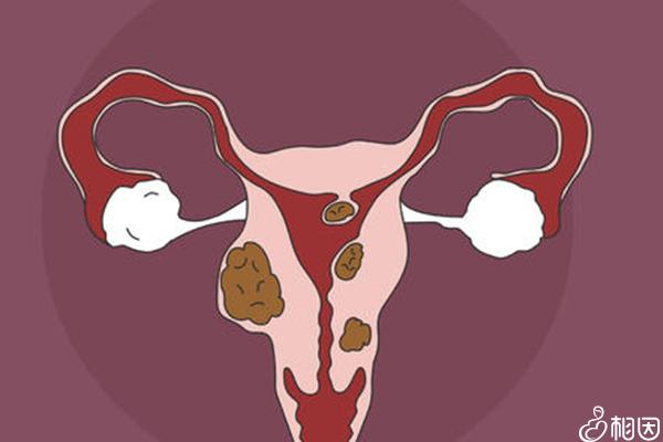 子宫内长满了子宫肌瘤