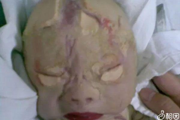 火棉胶婴儿因形似火棉胶而得名