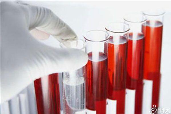 血常规检查前应保持空腹