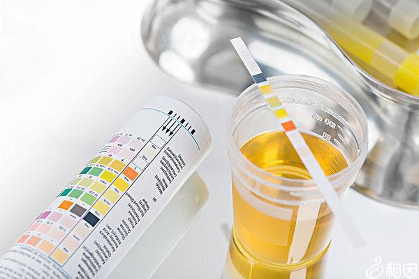 肾功能检查和尿常规的准确性