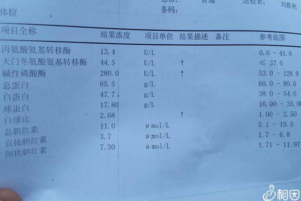 某医院出具的肝功能检查报告单