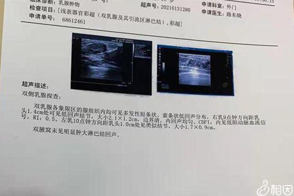 乳腺检查结果
